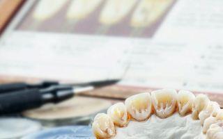 Средства отбеливания зубов